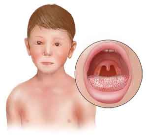 Streptococcal Infections (5/5)