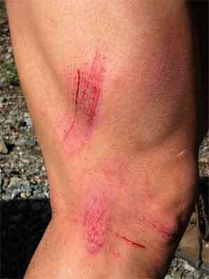 Cut, scrape & wound | 4dtraveler
